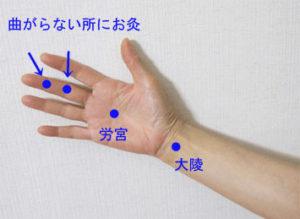 出張専門 こしがや鍼灸治療所 腱鞘炎 ばね指