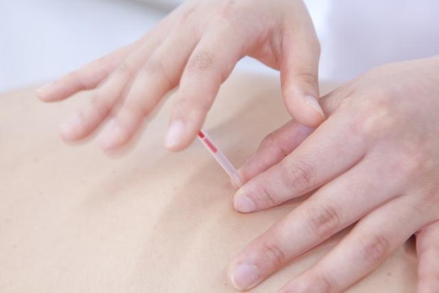 出張専門こしがや鍼灸治療所 治療方針