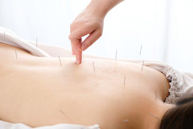 出張専門こしがや鍼灸治療所 鍼灸治療の対象