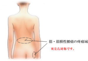 出張専門 こしがや鍼灸治療所 腰痛・ぎっくり腰