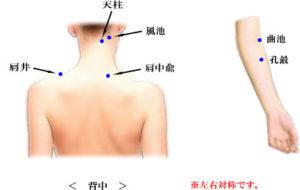出張専門 こしがや鍼灸治療所 首、肩、腕の痛み しびれ