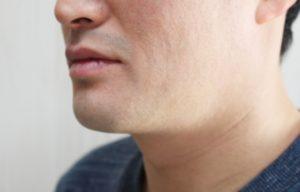 出張専門こしがや鍼灸治療所 症例別対処法 顎関節症 顎の痛み