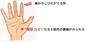出張専門 こしがや鍼灸治療所 手根管症候群