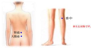 水天宮鍼灸院 腰痛・ぎっくり腰