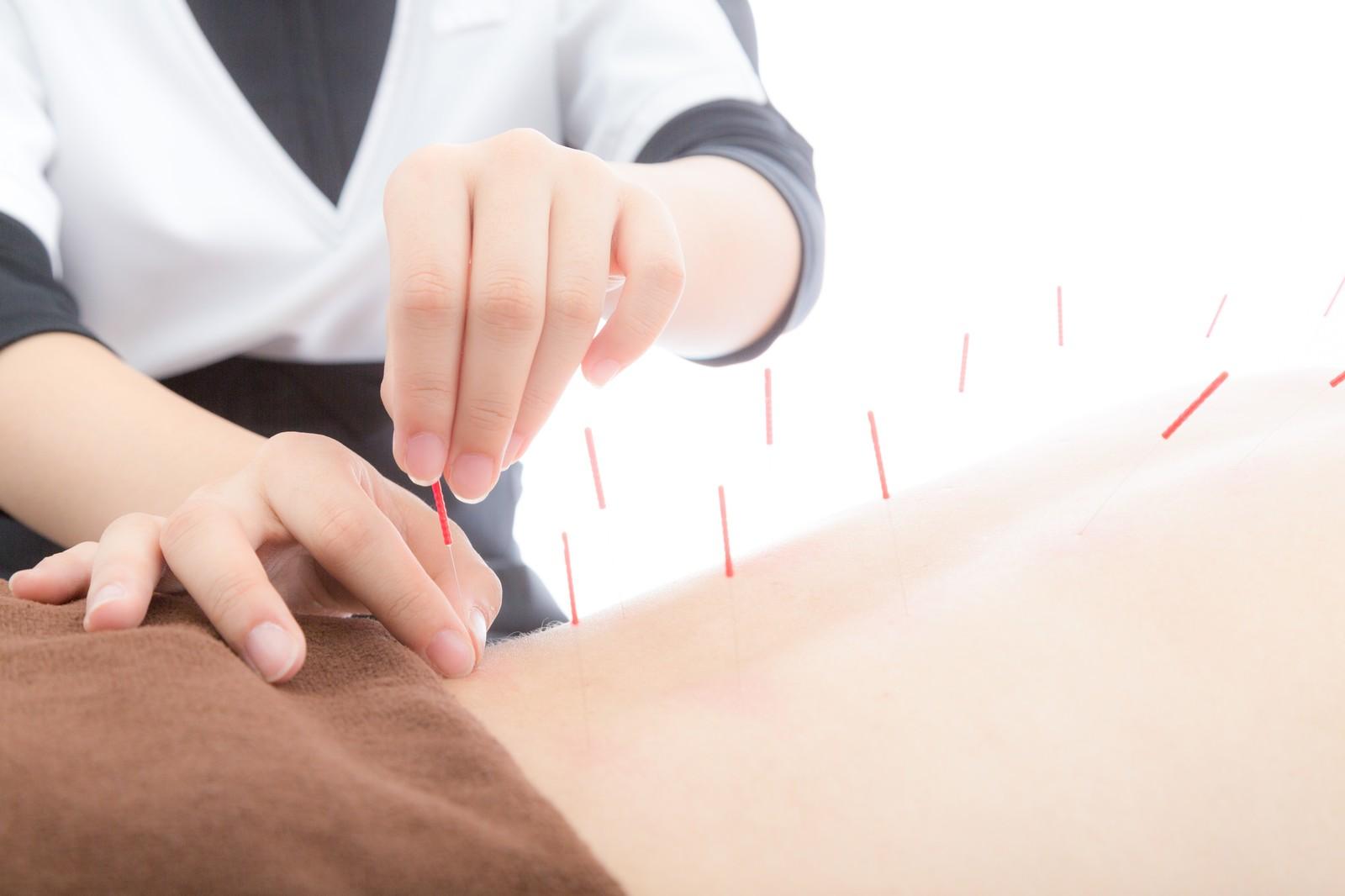 出張専門こしがや鍼灸治療所